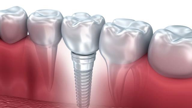 İşte Implant tedavisi hakkında bilmeniz gerekenler