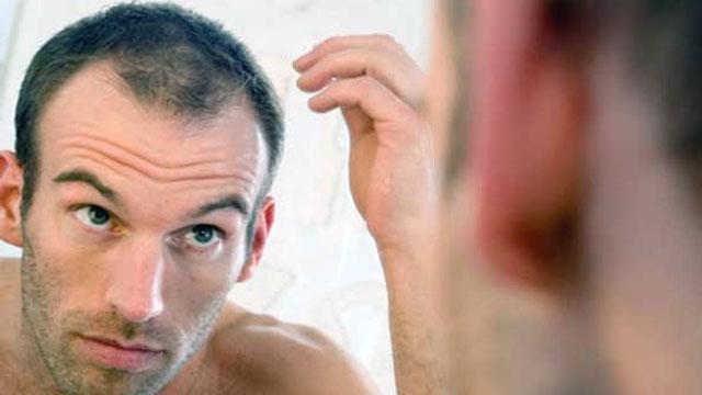Erkeklerde neden saç dökülmesi daha çok gözlemleniyor