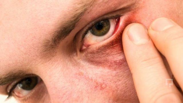 Tatilde gözlerinize dikkat etmezseniz mikrop kapabilirsiniz