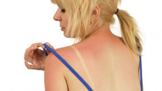 Güneş yanıklarını tedavinin yolu ham baldan geçiyor