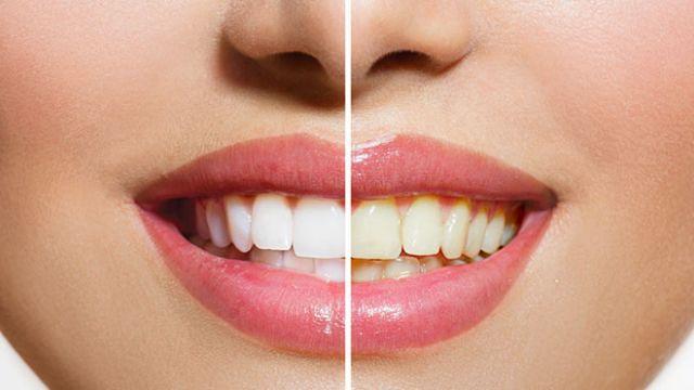 Bronzlaştınız sıra dişlerinizi beyazlatmakta