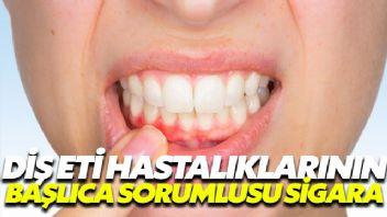 Diş eti hastalıklarının başlıca sorumlusu sigara