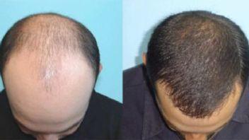 İşte erkeklerde saç dökülmesiyle mücadele yöntemleri